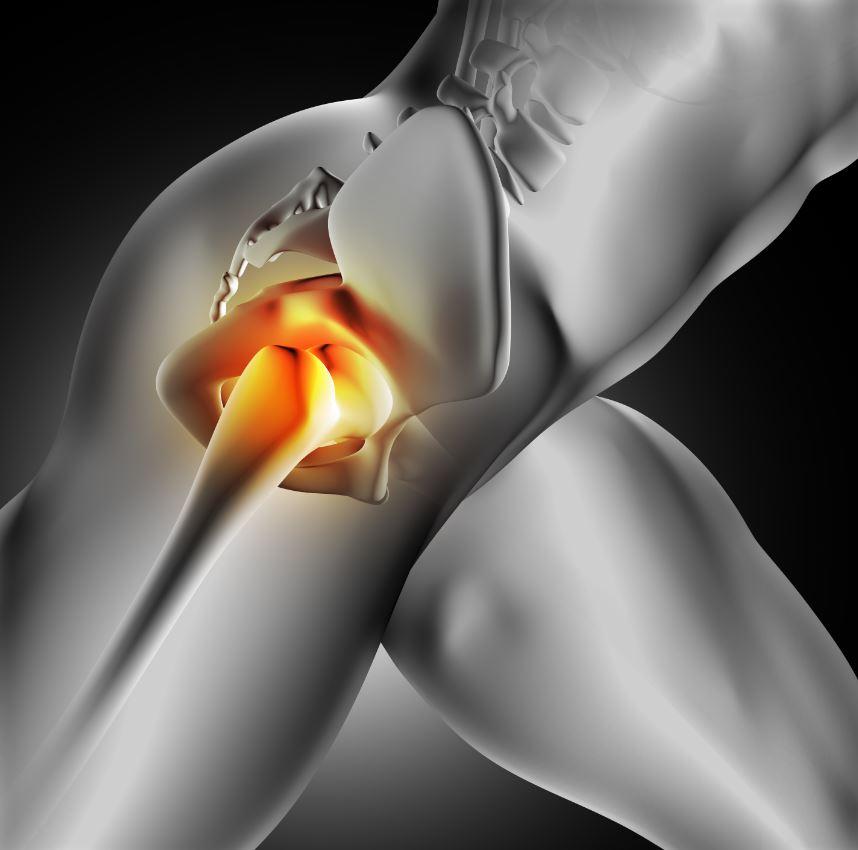 Gyógyszer csípőfájdalom enyhítésére